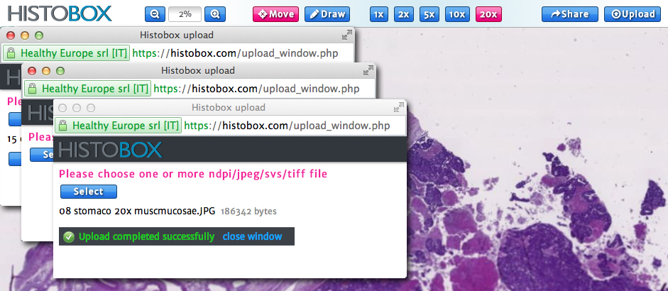 histobox multiple upload